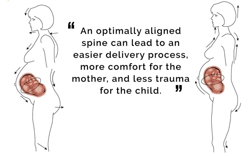Posture-during-pregnancy