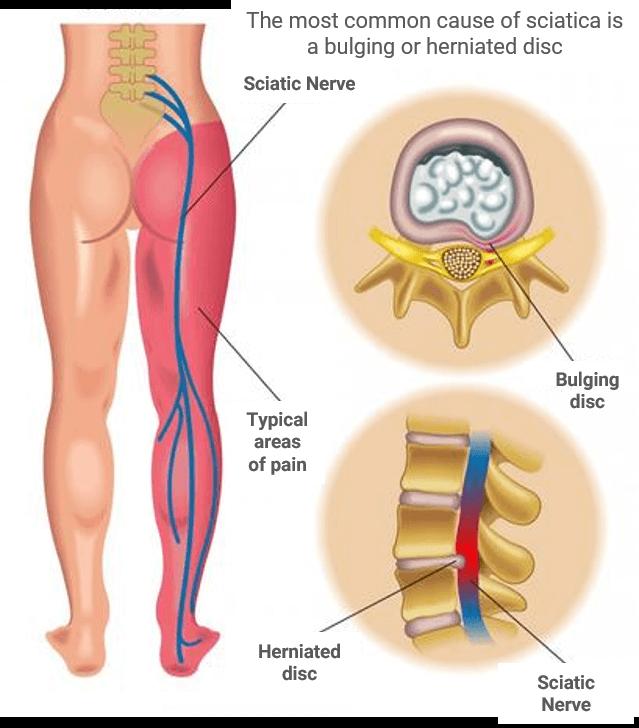 chiropractic-for-sciatica