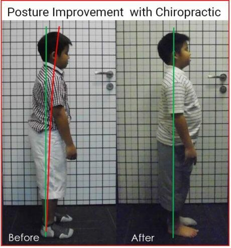 posture before and after chiropractor