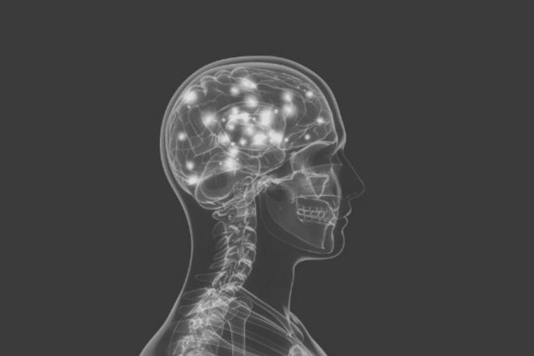 brain health featured image