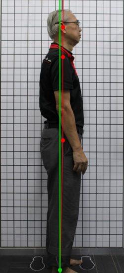 after-bad-posture