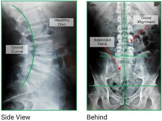 healthy-back-xrays