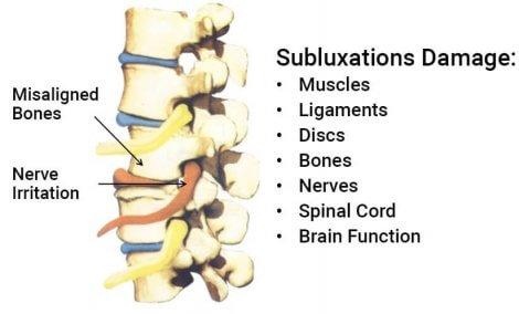 subluxation-damage